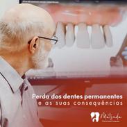 Perda dos dentes permanentes e suas cons
