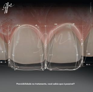 Imagem 07 - previsibilidade no tratamento-1.png