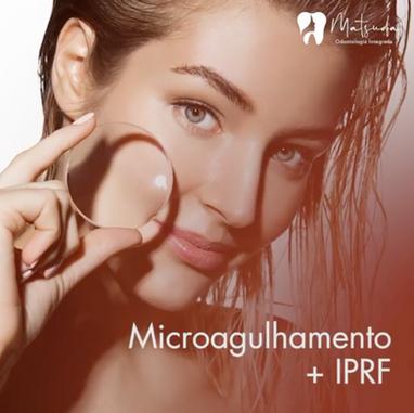 Microagulhamento e iprf.mp4