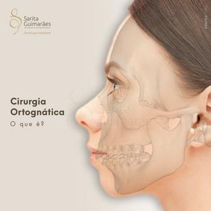 Imagem 05 - ortognática-1.png