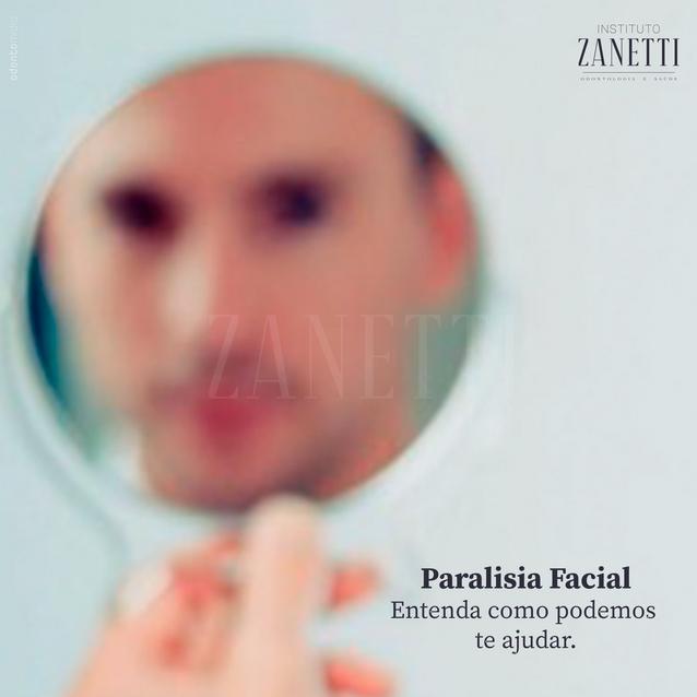 Imagem 07 - Paralisia facial.png