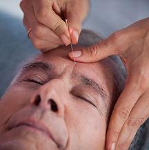 die Augenkur Augenakupunktur Akupunktur Sitzungen