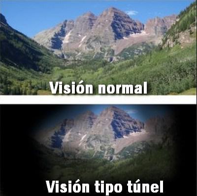 sintomas-glaucoma-ocular