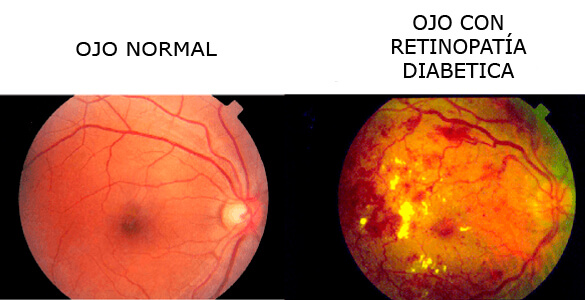 Retinopatia-diabetica_02