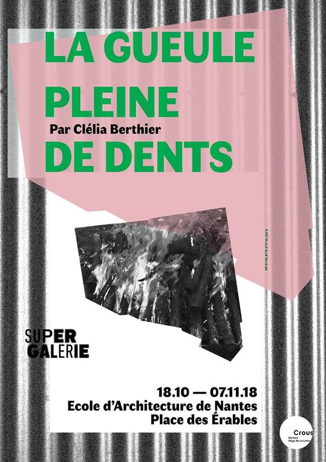 """""""LA GUEULE PLEINE DE DENTS"""" // SUPER Galerie"""