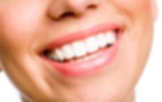 teeth whitening vaughan