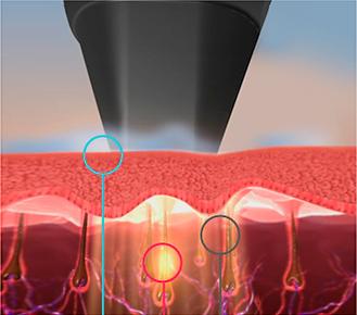 laser removal toronto