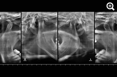 TMJ 2D Scan