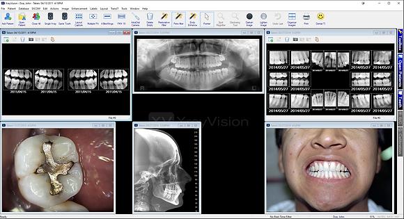 Apteryx Xray Vision 4 Software