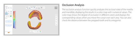 Occlusion Analysis