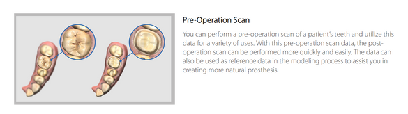 Pre-Operation Scan