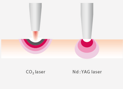 Virtually painless - CO2 and NdYAG laser