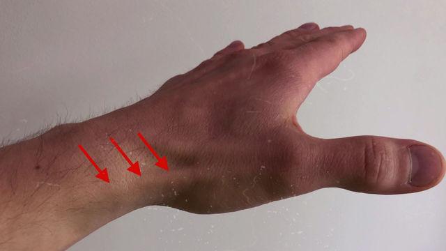 Zespól de Quervaina - czyli bolesny kciuk młodej mamy