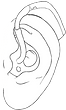 Hearing aid illustration