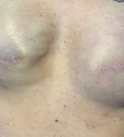 Before Areola Restorative Tattoo