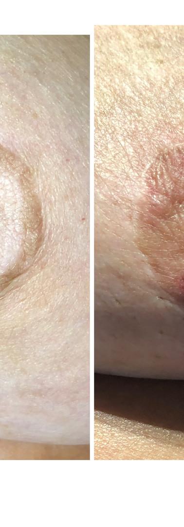 Vitiligo - Before & After A.R.T.