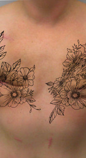 Decorative Scar Coverup Example