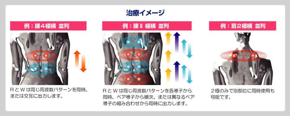 干渉波(クリオスアンフィニ)の説明