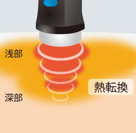 超音治療器説明