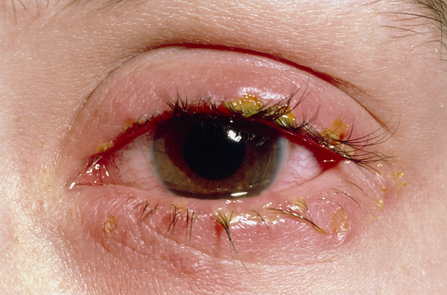 m1550073-acute-blepharitis-science-photo