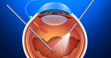 vitrectomy-1.jpg