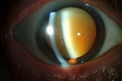 Morgagnian-Cataract-2