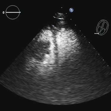 Right Ventricular Mass