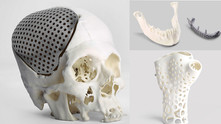 How 3D Printing changing the medical field