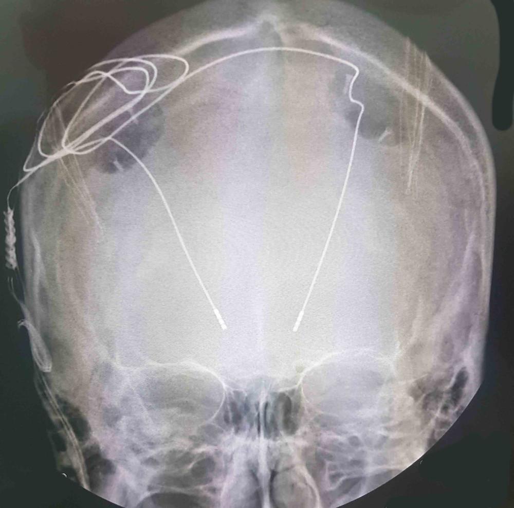 Note os eletródos cerebrais profundos inseridos