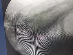 bloqueio transforaminal lombar.jpeg