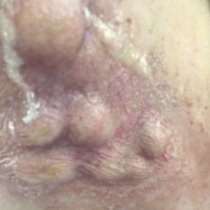 Silicone spots & puss