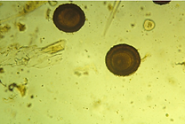 Large-round-worm-ascarid-eggs-Note-the-t