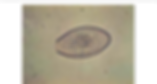 Morphology-of-oxyuris-equi-egg.png