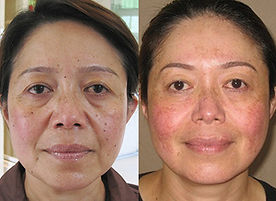 BLC Theray skin rejuveation treatment pi