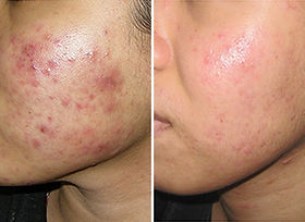 blc therapy acne treament natural pcos s