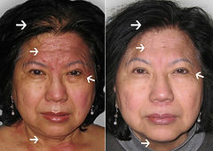 Eczema and wrinkle blc therapy.jpg