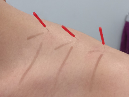Does Acupuncture help with menopausal symptoms?