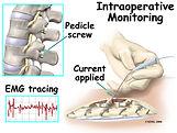intraop_monitoring_surgery01.jpg