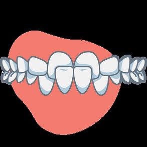 crossbite-front-teeth.png