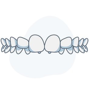 overbite.png