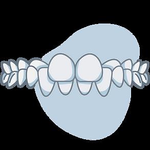 crossbite-back-teeth.png