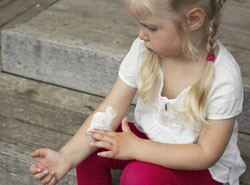 Tips to help treat Eczema - Naturally