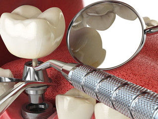 3 métodos para substituir dentes permanentes - Qual é o melhor?