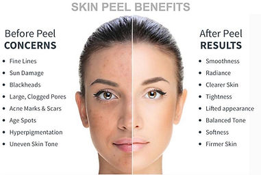 chemical peel pics.jpg