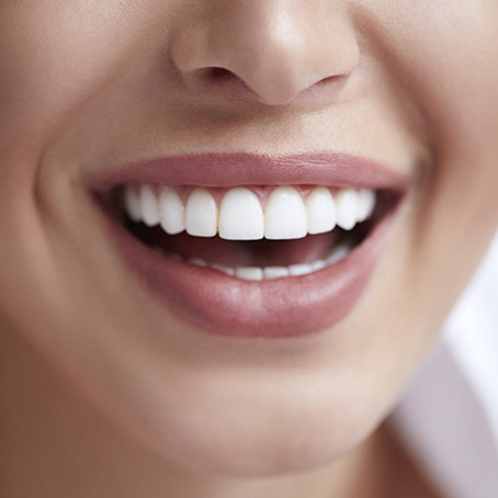 The Best Gift to Give Your S.O. This Holiday: Teeth Whitening!