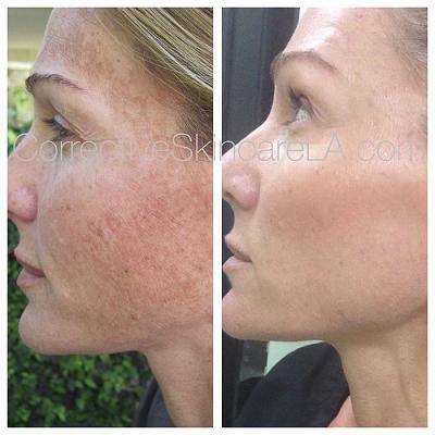 Reduced Facial Pigmentation