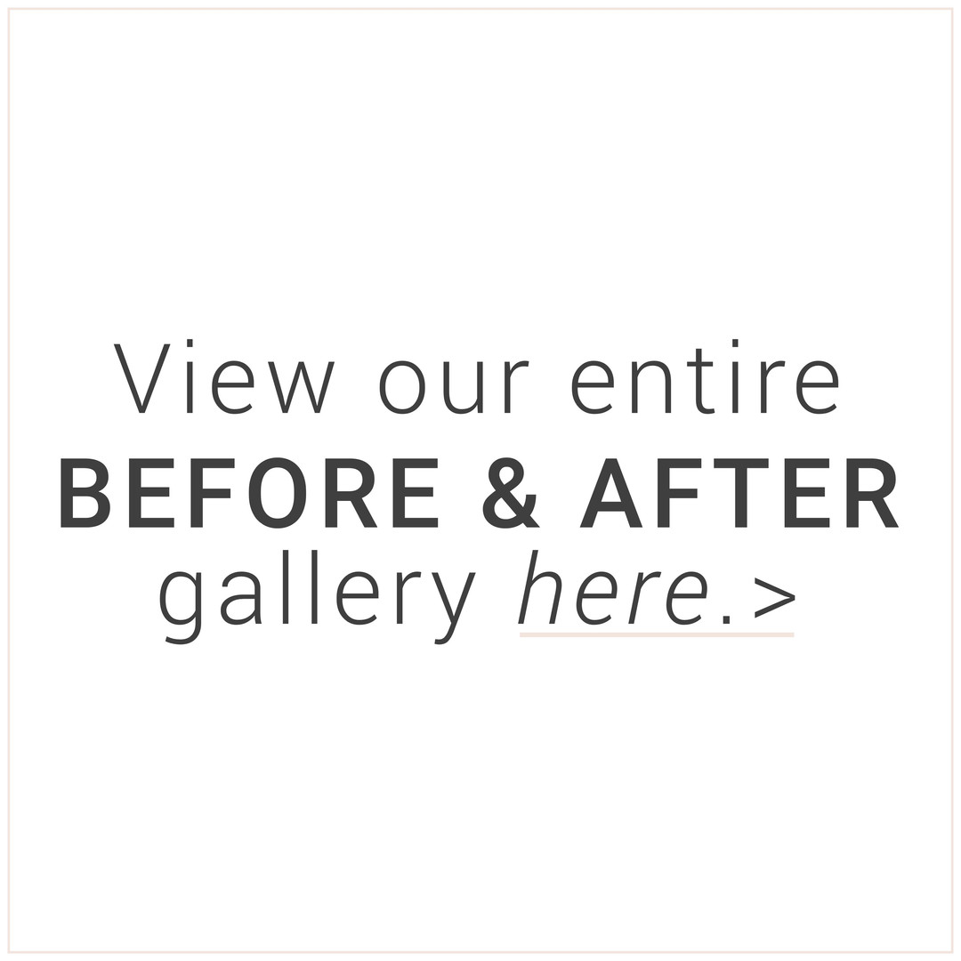 before and after gallery square csla.jpg