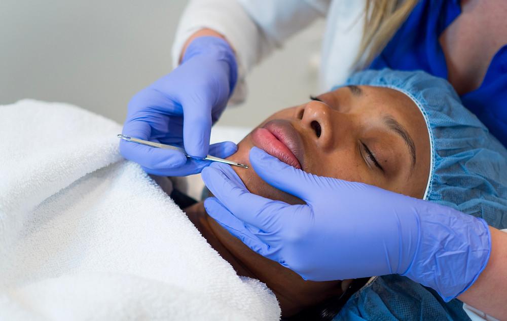Corrective-Skincare-LA-acne-anti-aging-facial