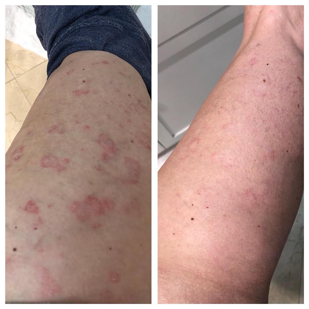 Corrective Skincare Eczema
