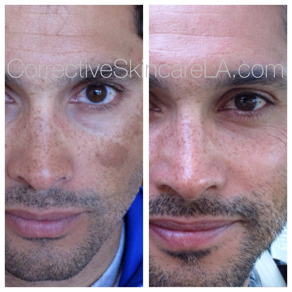 Corrective Skincare LA Before and After
